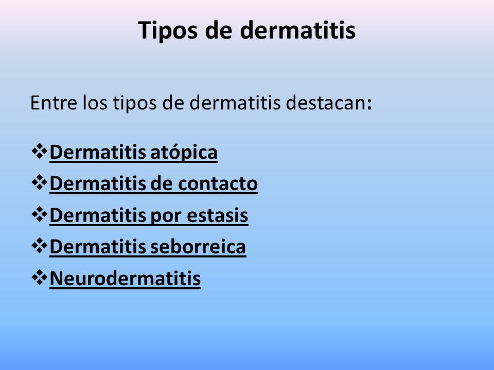 Tipos de dermatitis Entre los tipos de dermatitis destacan:
