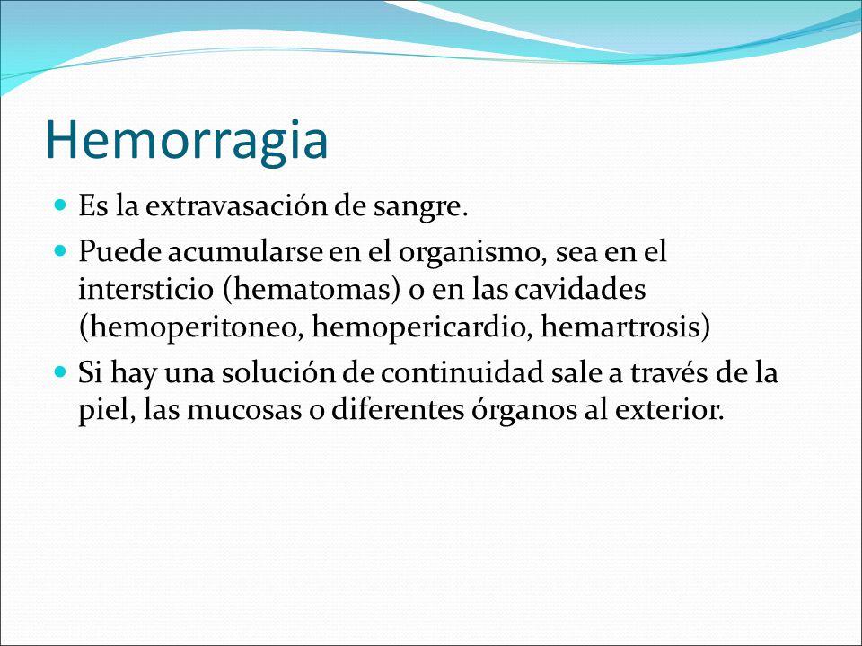 Hemorragia Es la extravasación de sangre.