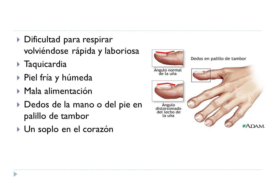 Pelar la piel en la parte inferior de los pies