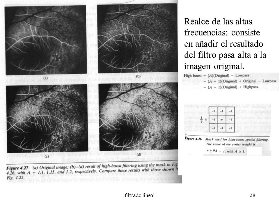 digital image processing gonzalez pdf