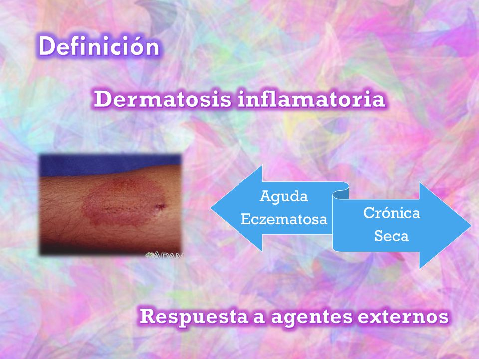 Dermatosis inflamatoria Respuesta a agentes externos
