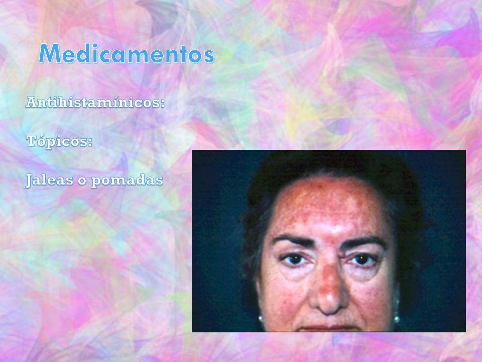 Medicamentos Antihistamínicos: Tópicos: Jaleas o pomadas