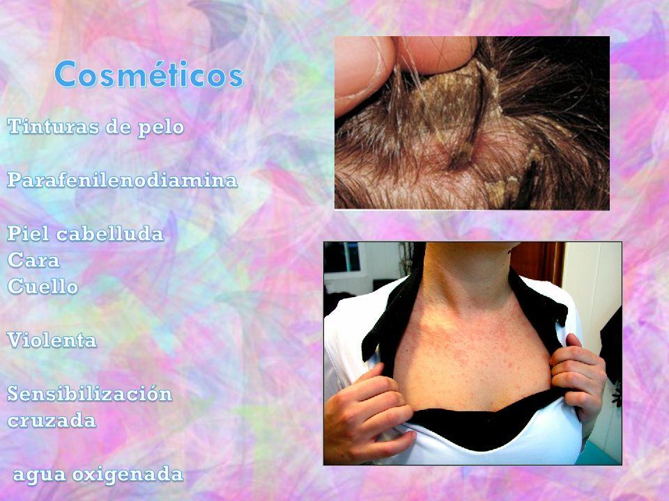 Cosméticos Tinturas de pelo Parafenilenodiamina Piel cabelluda Cara