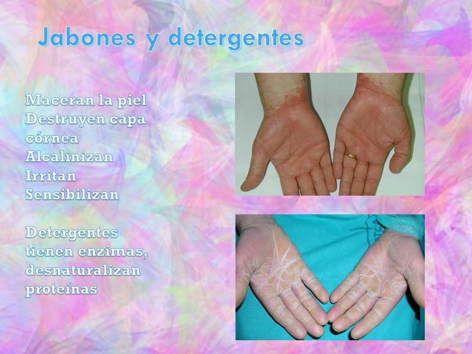 Jabones y detergentes Maceran la piel Destruyen capa córnea
