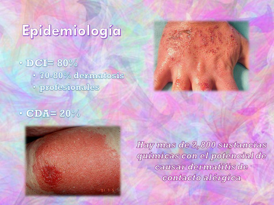 Epidemiología DCI= 80% CDA= 20% 70-80% dermatosis profesionales
