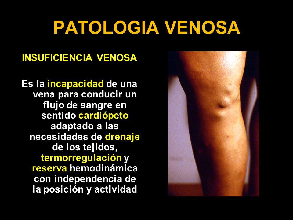 PATOLOGIA VENOSA INSUFICIENCIA VENOSA