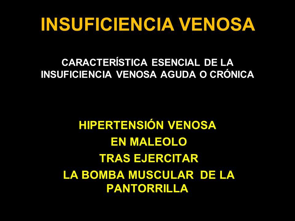 INSUFICIENCIA VENOSA HIPERTENSIÓN VENOSA EN MALEOLO TRAS EJERCITAR