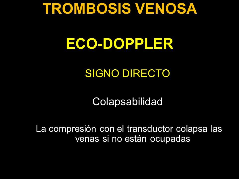 TROMBOSIS VENOSA ECO-DOPPLER