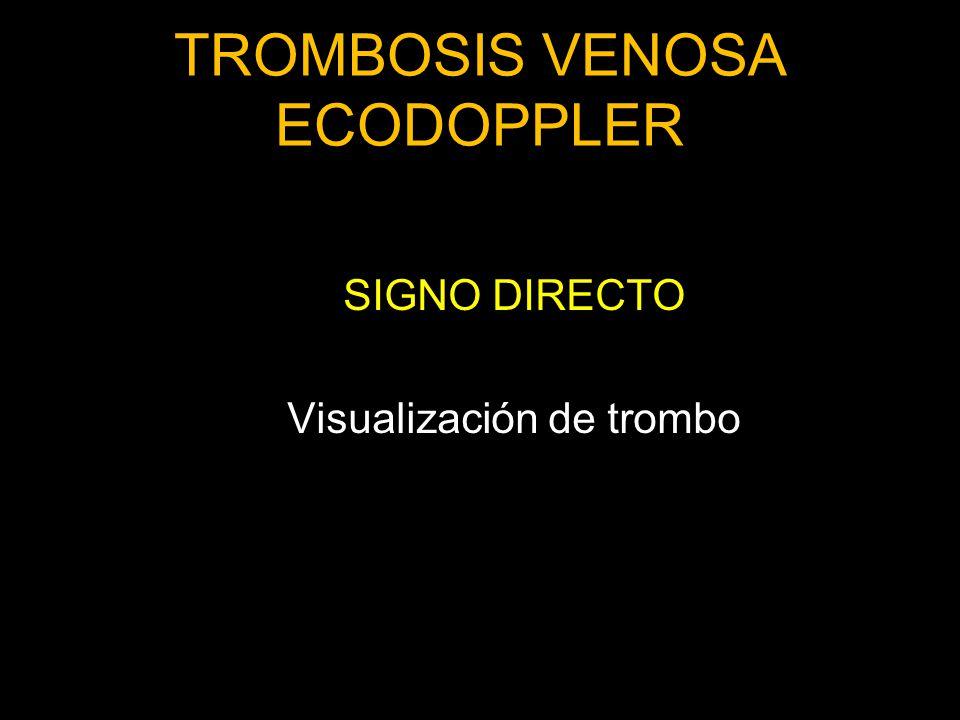 TROMBOSIS VENOSA ECODOPPLER