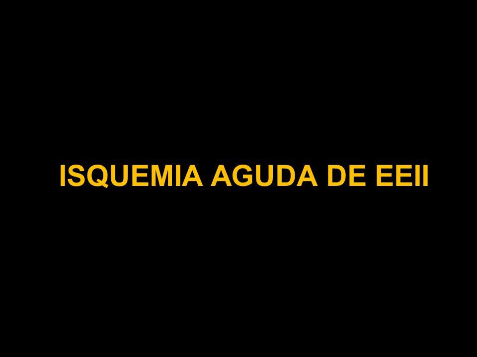 ISQUEMIA AGUDA DE EEII