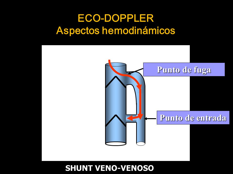 ECO-DOPPLER Aspectos hemodinámicos