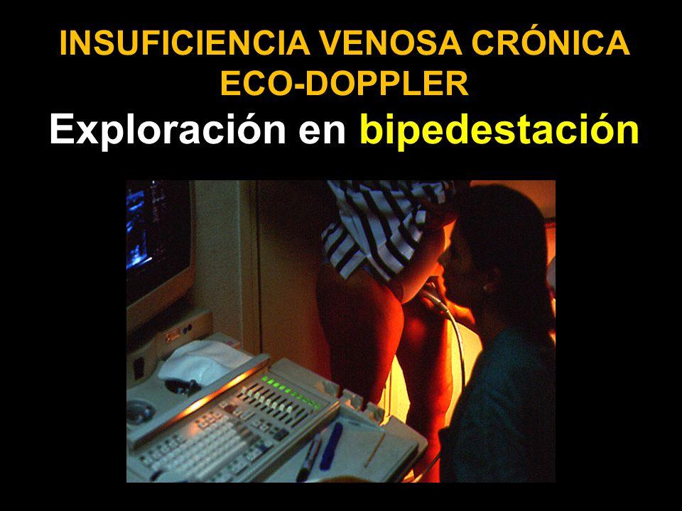 INSUFICIENCIA VENOSA CRÓNICA ECO-DOPPLER Exploración en bipedestación
