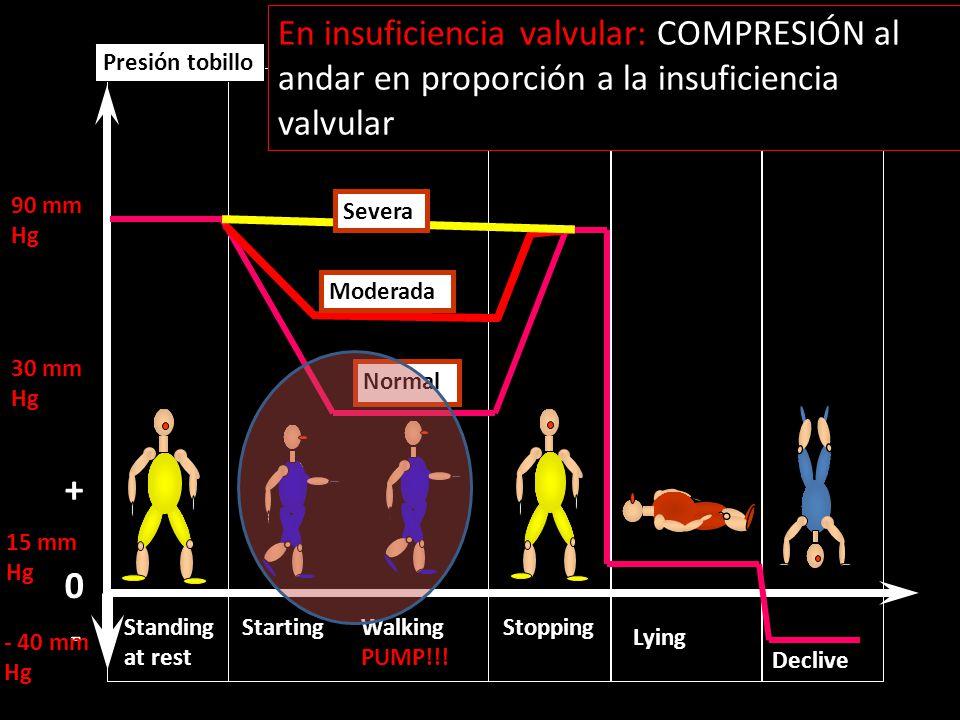 En insuficiencia valvular: COMPRESIÓN al andar en proporción a la insuficiencia valvular