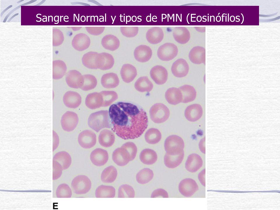 Sangre Normal y tipos de PMN (Eosinófilos)