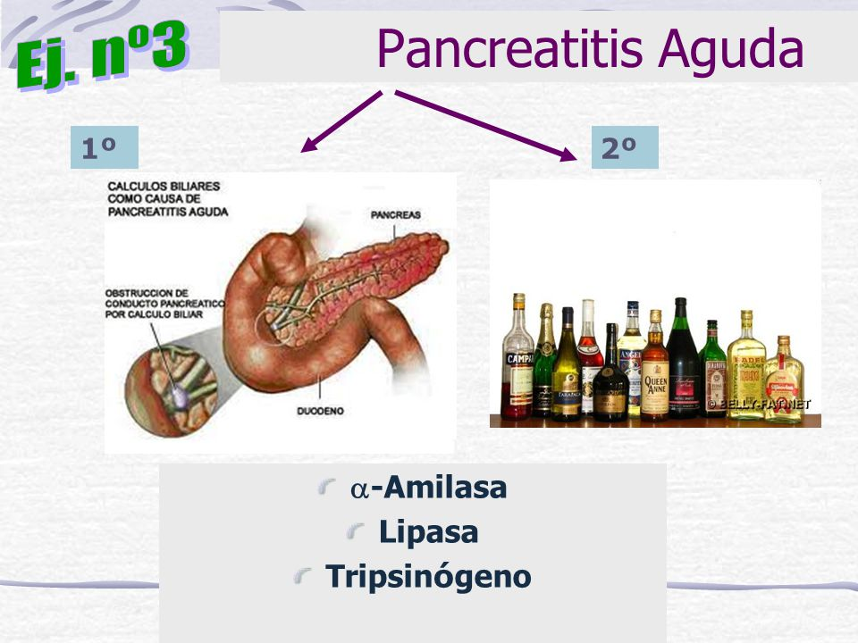 Pancreatitis Aguda Ej. nº3 1º 2º -Amilasa Lipasa Tripsinógeno