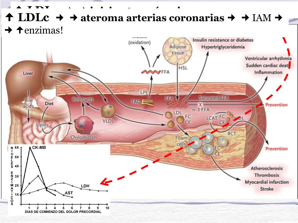  LDLc   inicio aterogénesis