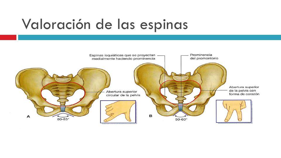 Valoración de las espinas