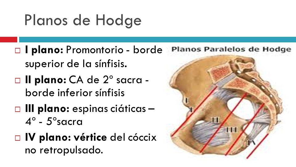 Planos de Hodge I plano: Promontorio - borde superior de la sínfisis.