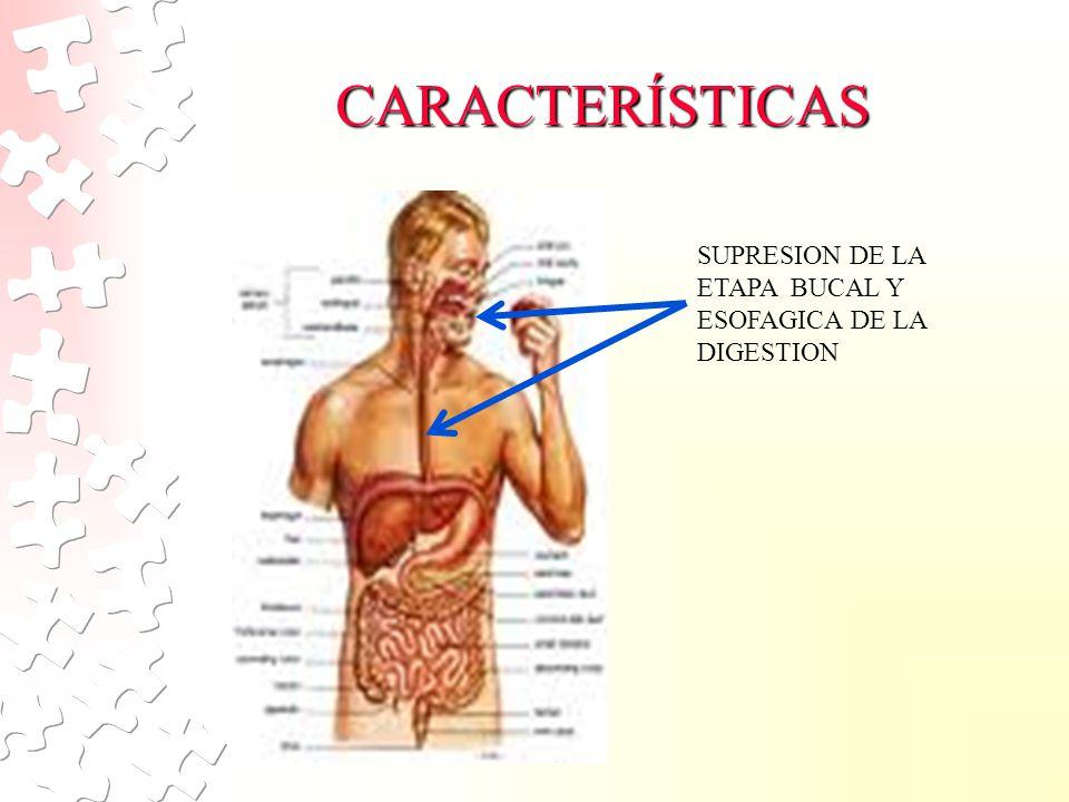 CARACTERÍSTICAS SUPRESION DE LA ETAPA BUCAL Y ESOFAGICA DE LA DIGESTION.