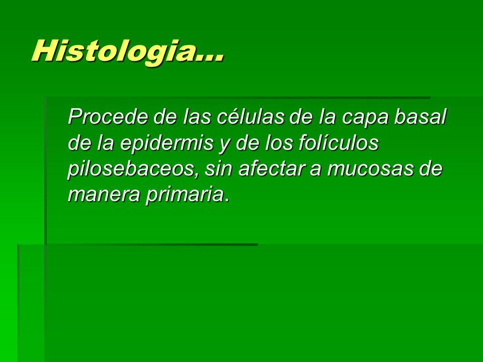 Histologia… Procede de las células de la capa basal de la epidermis y de los folículos pilosebaceos, sin afectar a mucosas de manera primaria.