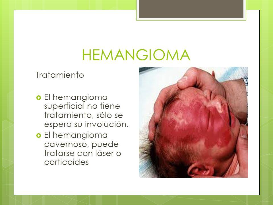 HEMANGIOMA Tratamiento