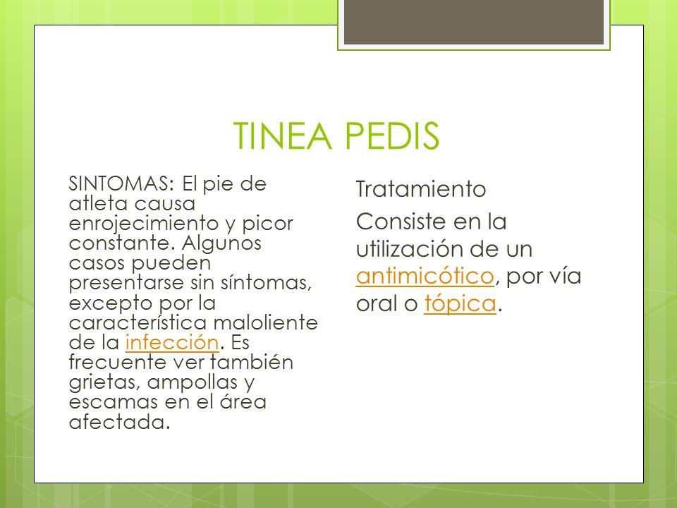 TINEA PEDIS Tratamiento