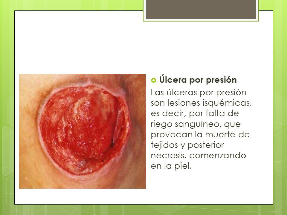 Úlcera por presión