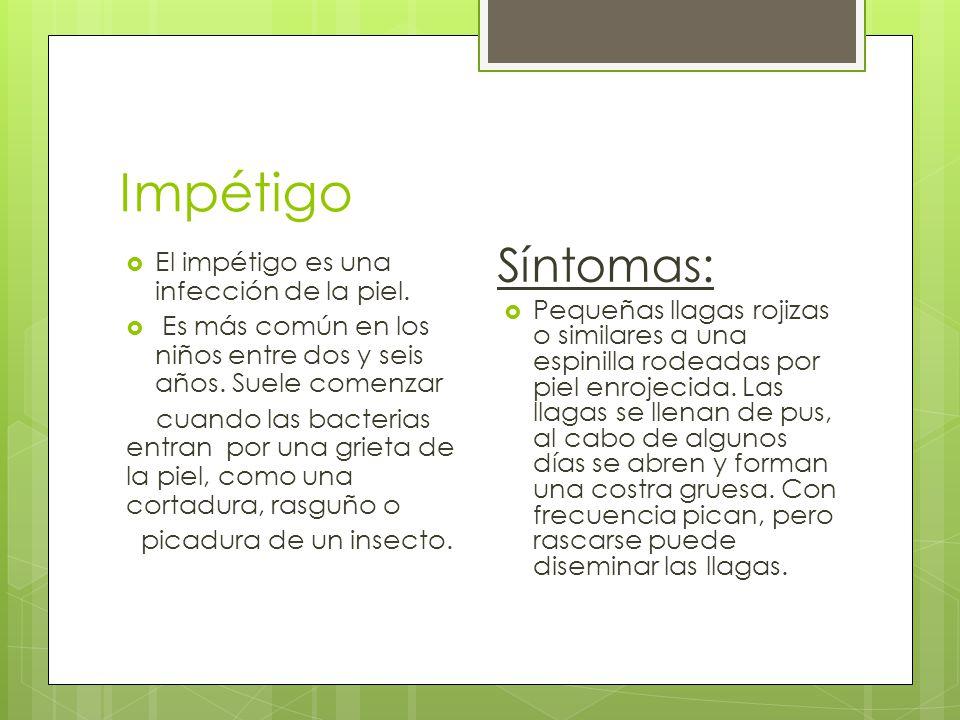 Impétigo Síntomas: El impétigo es una infección de la piel.
