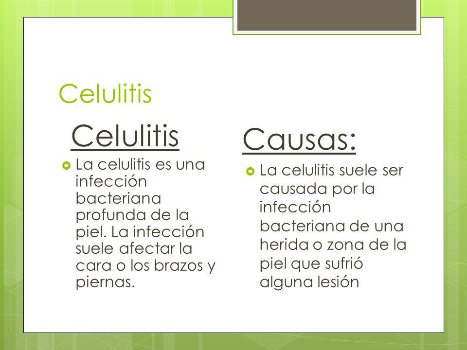 Causas: Celulitis Celulitis