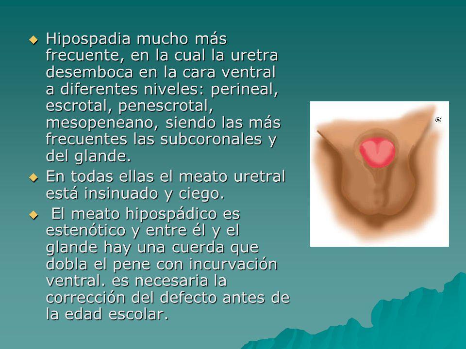 Hipospadia mucho más frecuente, en la cual la uretra desemboca en la cara ventral a diferentes niveles: perineal, escrotal, penescrotal, mesopeneano, siendo las más frecuentes las subcoronales y del glande.