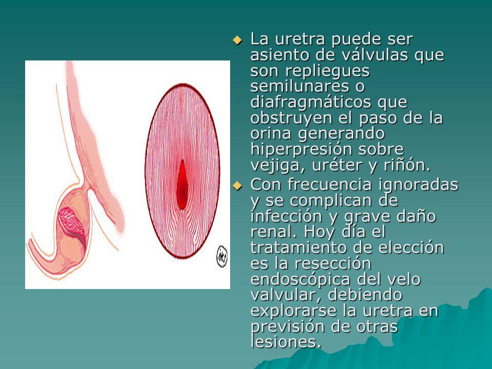La uretra puede ser asiento de válvulas que son repliegues semilunares o diafragmáticos que obstruyen el paso de la orina generando hiperpresión sobre vejiga, uréter y riñón.