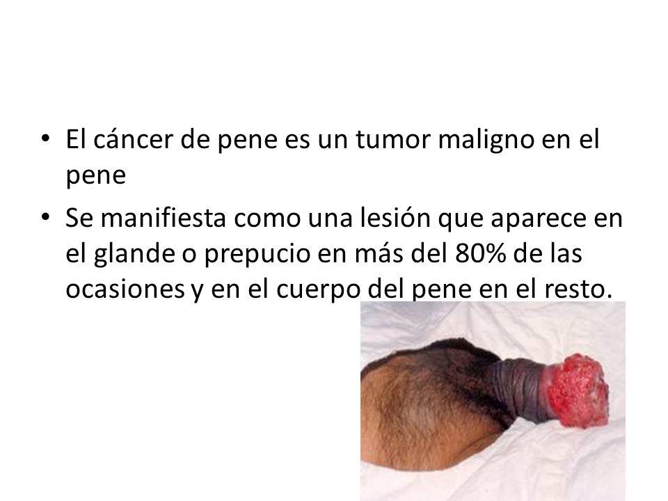 El cáncer de pene es un tumor maligno en el pene