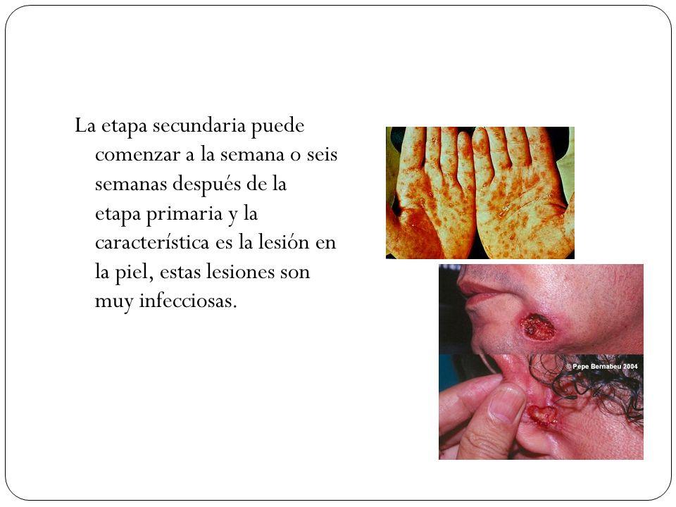 La etapa secundaria puede comenzar a la semana o seis semanas después de la etapa primaria y la característica es la lesión en la piel, estas lesiones son muy infecciosas.