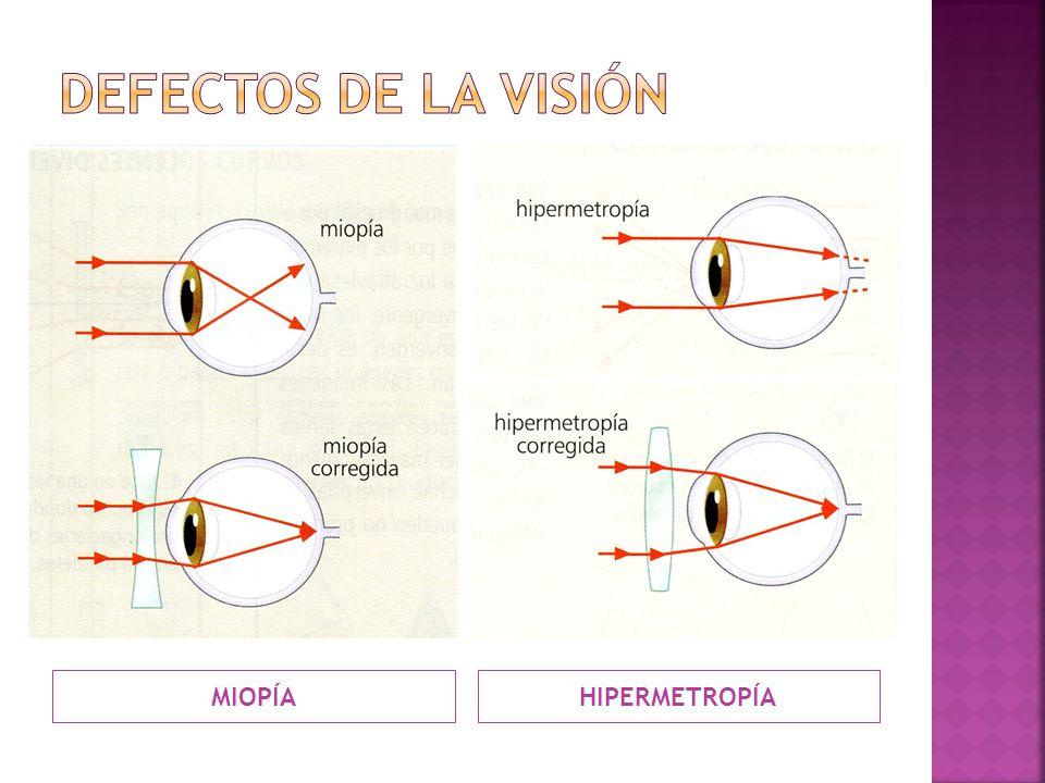 Defectos de la visión MIOPÍA HIPERMETROPÍA