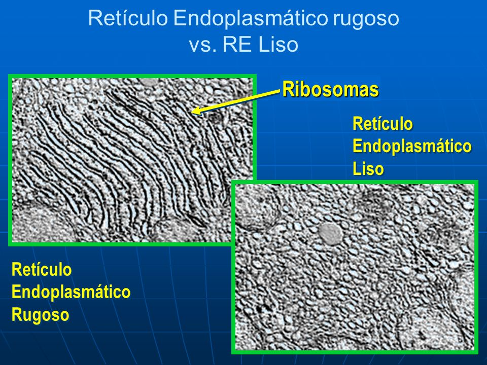 Retículo Endoplasmático rugoso vs. RE Liso