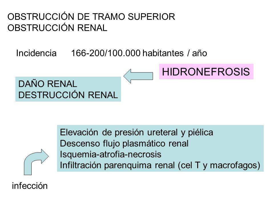 HIDRONEFROSIS OBSTRUCCIÓN DE TRAMO SUPERIOR OBSTRUCCIÓN RENAL