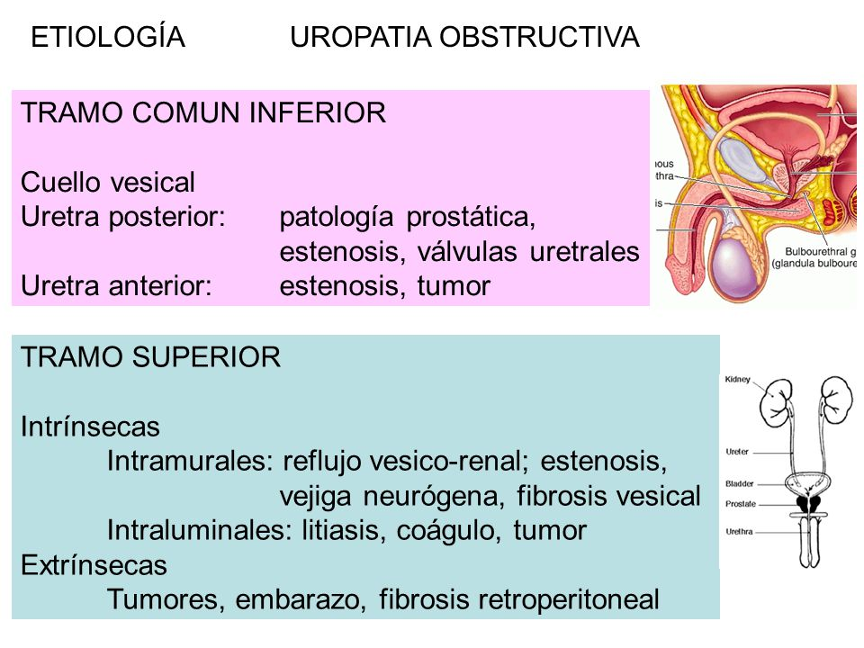 ETIOLOGÍA UROPATIA OBSTRUCTIVA