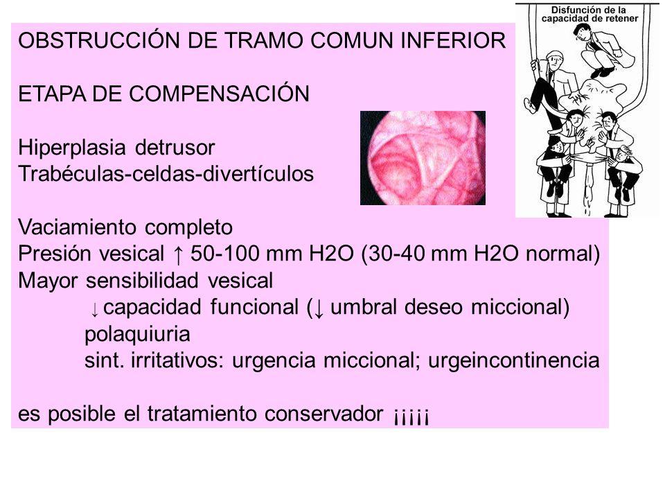 OBSTRUCCIÓN DE TRAMO COMUN INFERIOR
