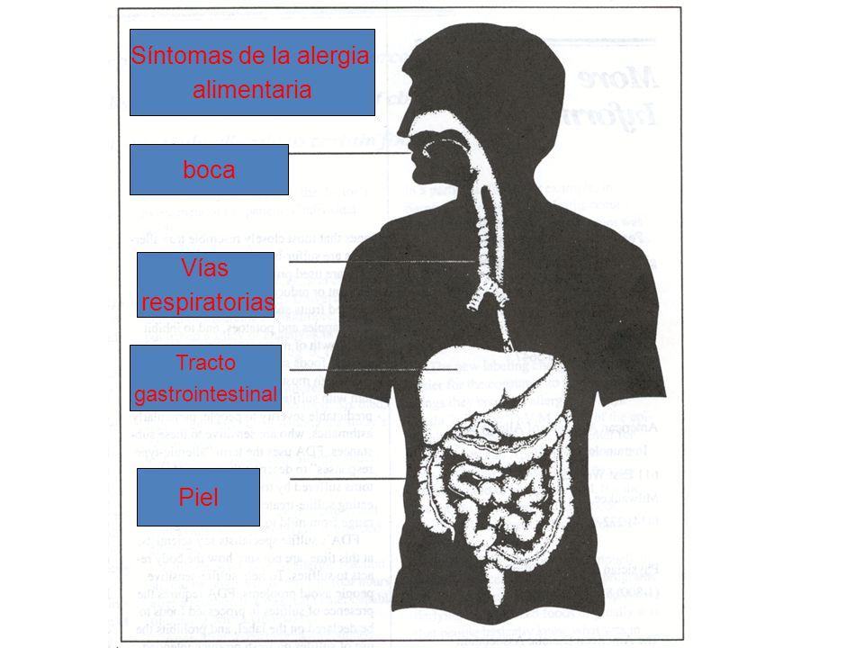 Síntomas de la alergia alimentaria boca Vías respiratorias Piel Tracto