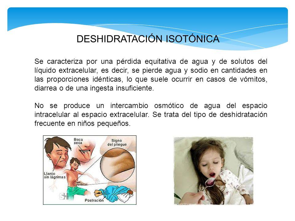 DESHIDRATACIÓN ISOTÓNICA