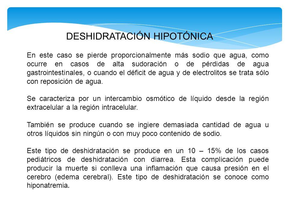 DESHIDRATACIÓN HIPOTÓNICA