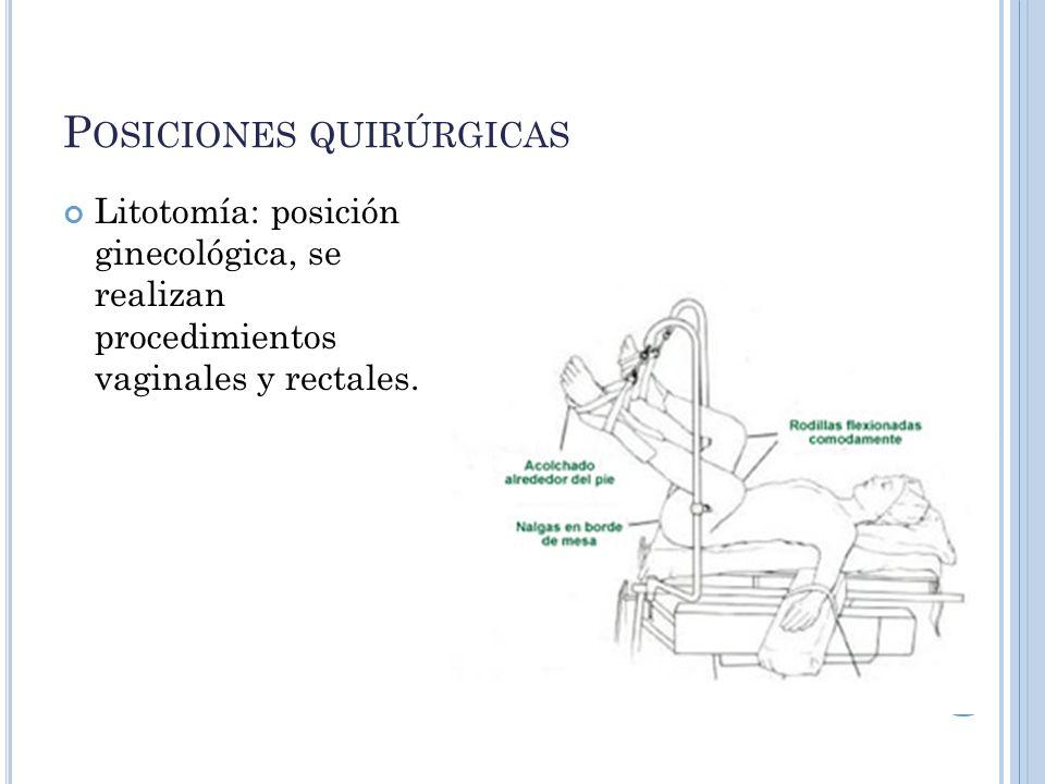 Posiciones quirúrgicas