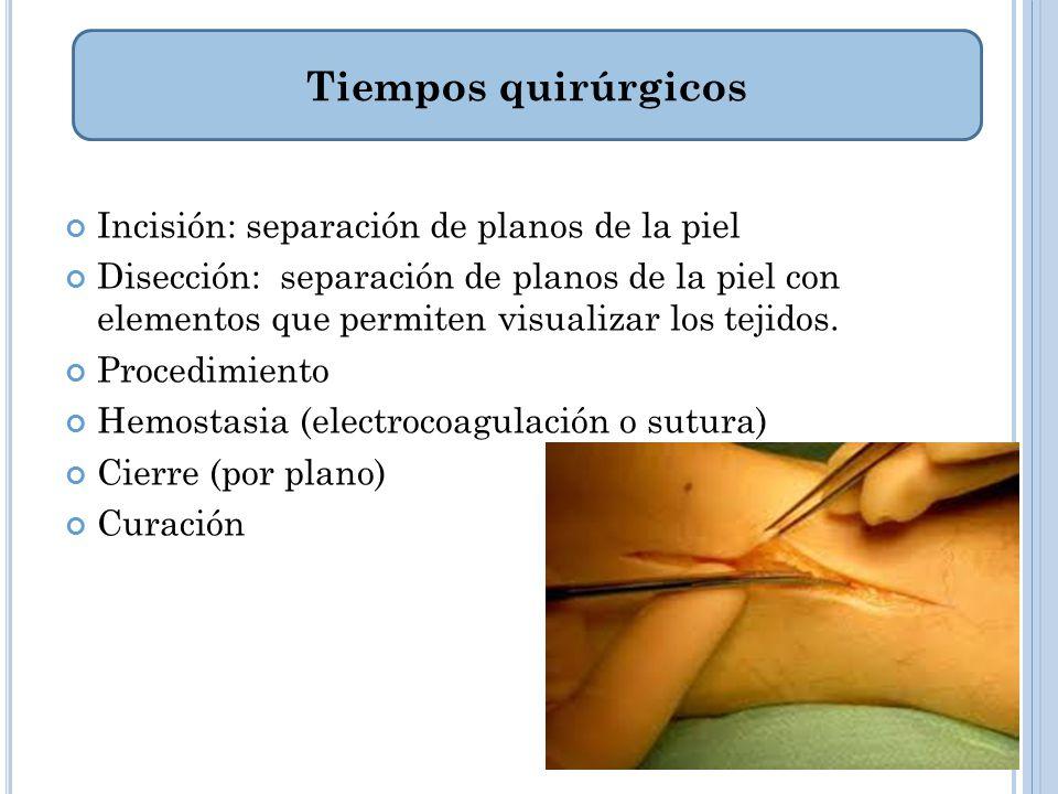 Tiempos quirúrgicos Incisión: separación de planos de la piel