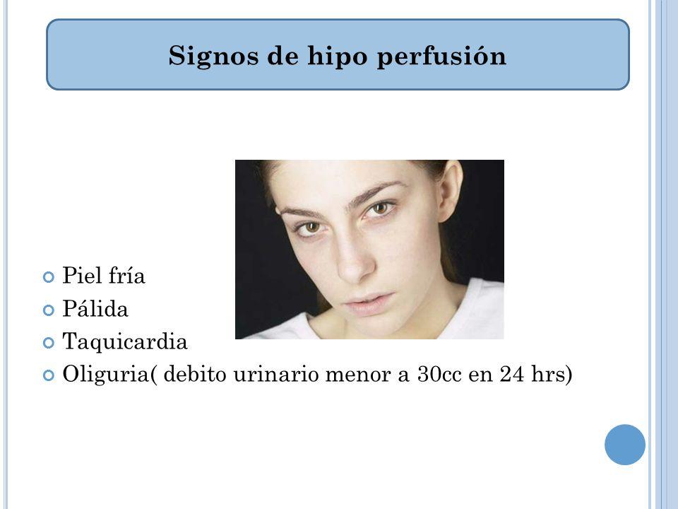 Signos de hipo perfusión