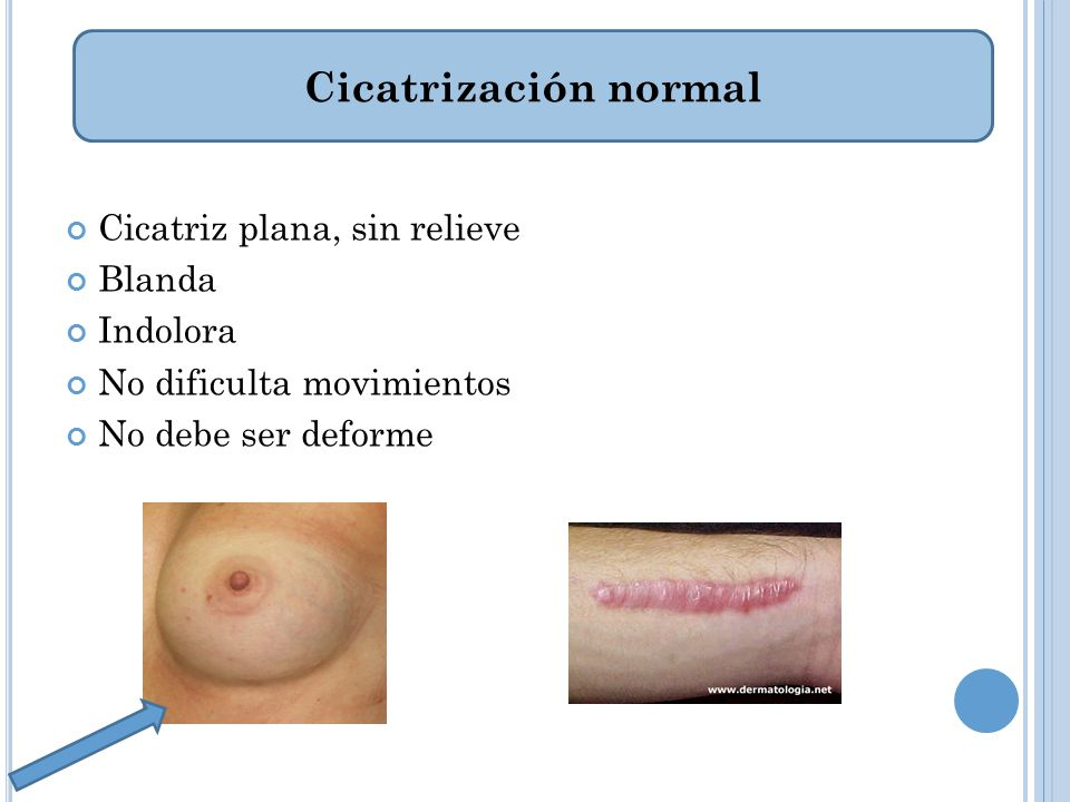 Cicatrización normal Cicatriz plana, sin relieve Blanda Indolora