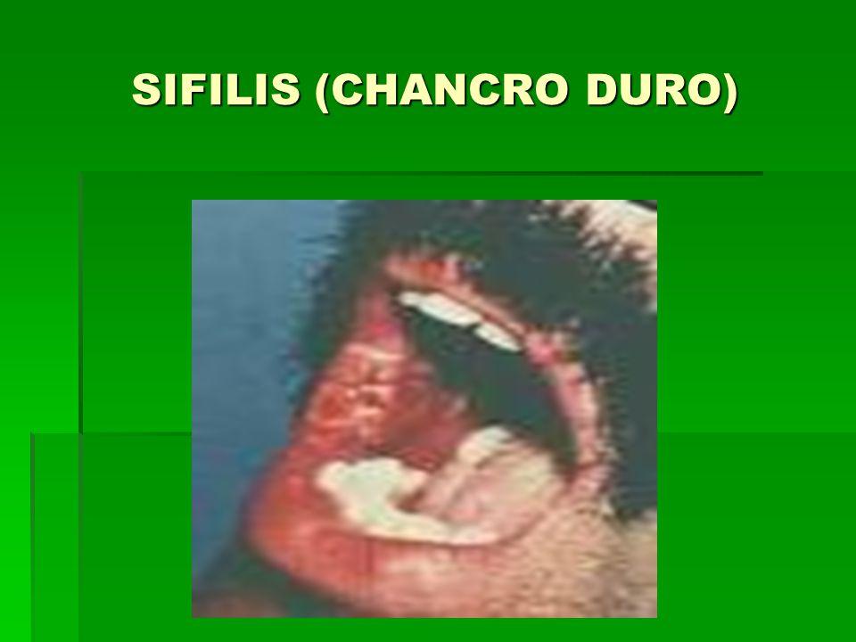 SIFILIS (CHANCRO DURO)