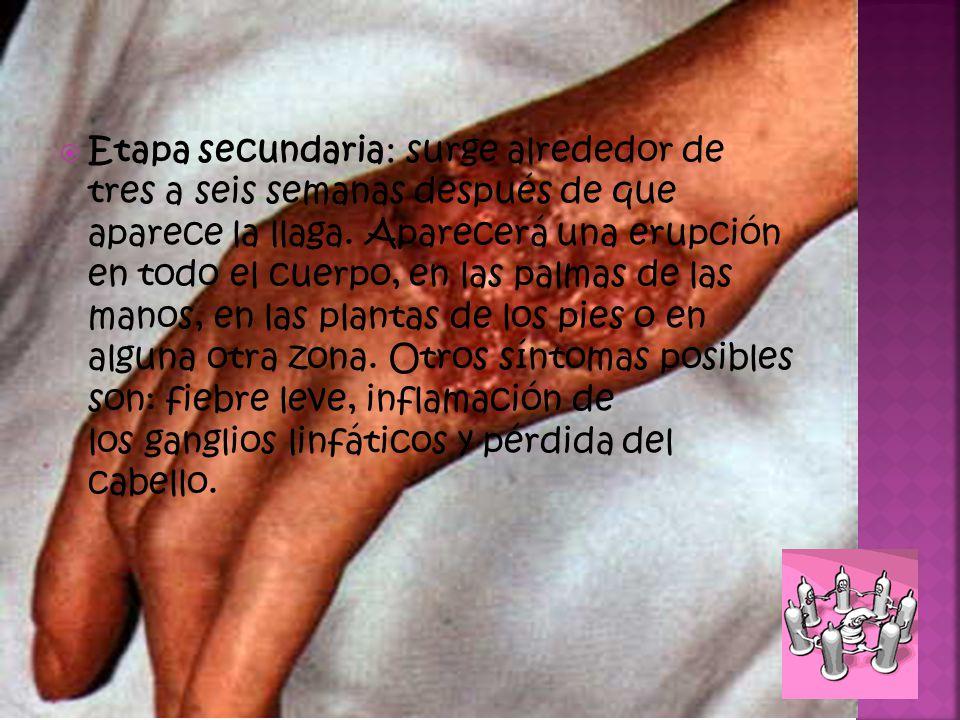 Etapa secundaria: surge alrededor de tres a seis semanas después de que aparece la llaga.