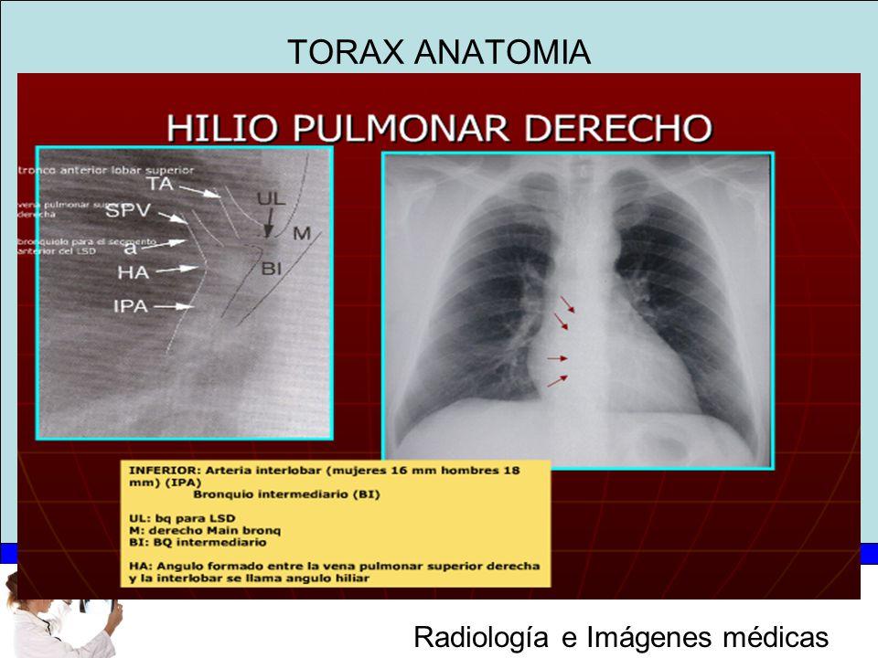 Moderno Anatomía Pulmonar Lobar Componente - Imágenes de Anatomía ...
