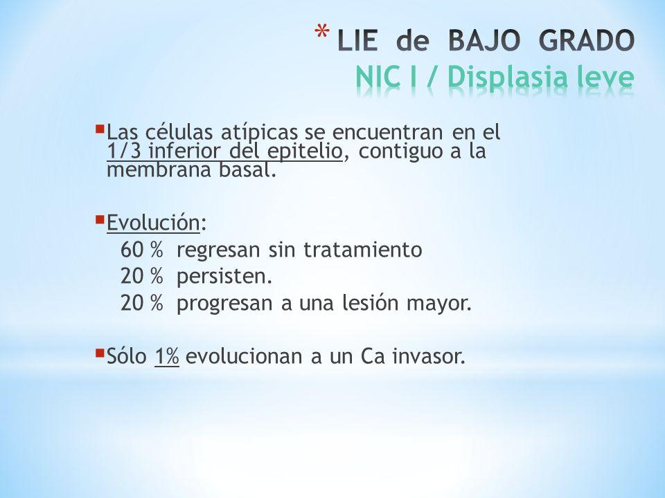 LIE de BAJO GRADO NIC I / Displasia leve