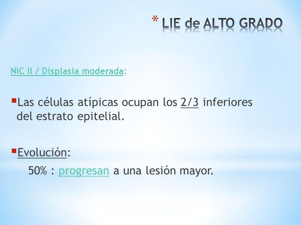 LIE de ALTO GRADO NIC II / Displasia moderada: Las células atípicas ocupan los 2/3 inferiores del estrato epitelial.